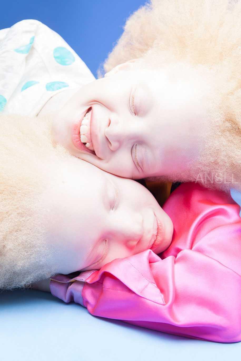来自巴西的白化病双胞胎,正以其独特的美丽挑战时尚界的审美