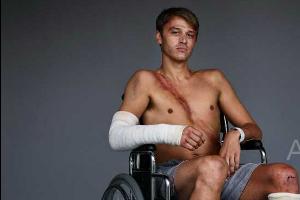 10名车祸幸存者自豪的露出自己的伤疤为你证明,安全带能救你命!