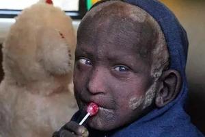 """印度男孩身患怪病全身皮肤坚硬无比,正慢慢变成""""石头人"""""""